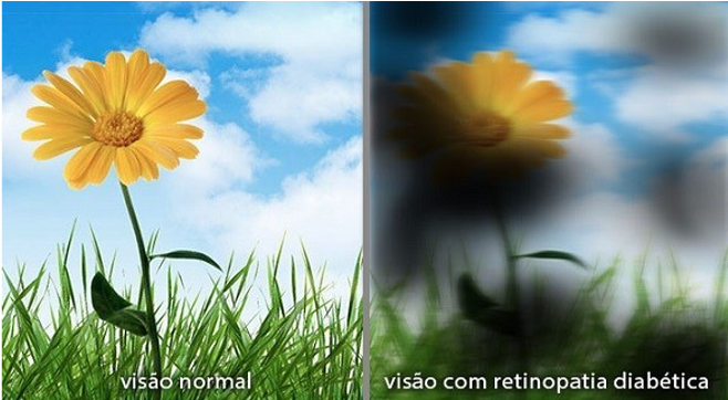 retino diabetica